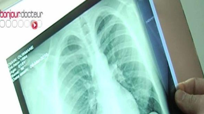 La tuberculose fait de la résistance en Grande-Bretagne