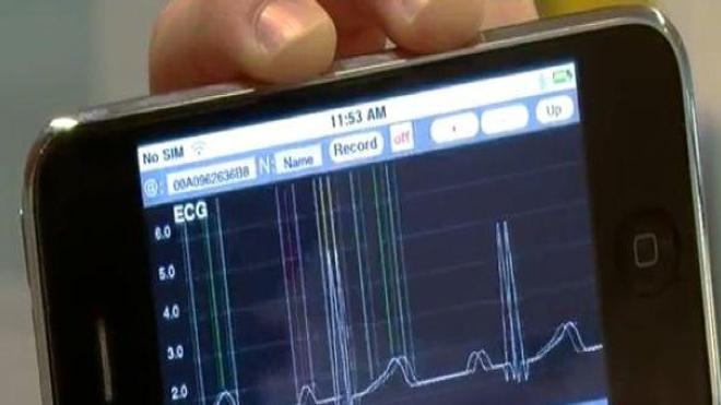 Des téléphones portables à l'écoute des anomalies cardiaques