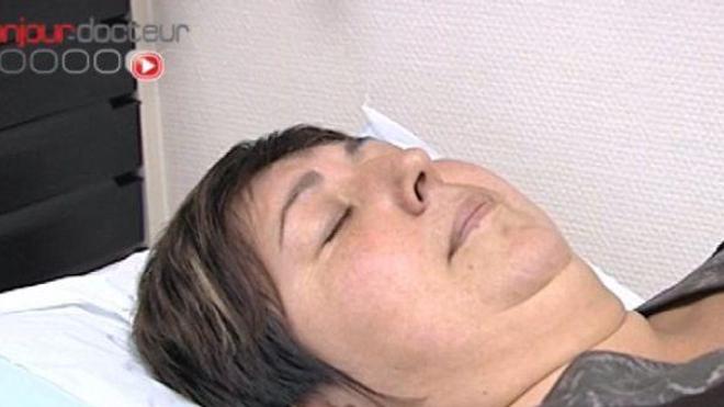 Les troubles du sommeil responsables de fibromyalgie chez la femme ?