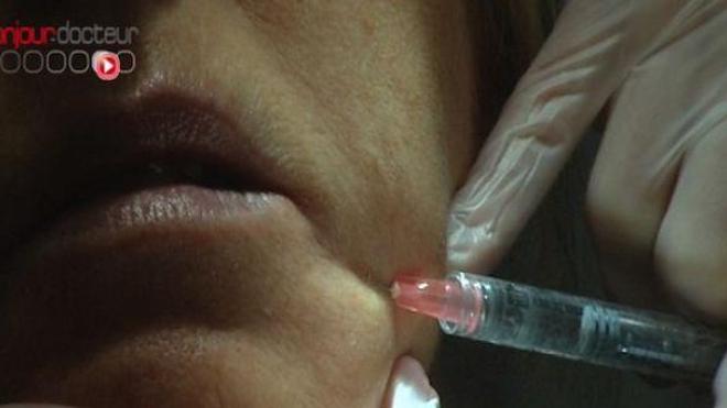 Tchat : les ratés de la chirurgie esthétique