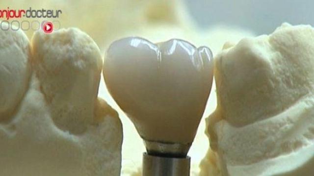 Prothèses dentaires : origines à contrôler