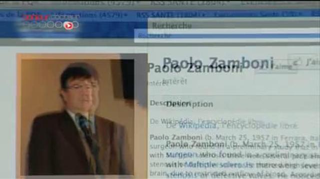 Sclérose en plaques : la controverse du traitement Zamboni