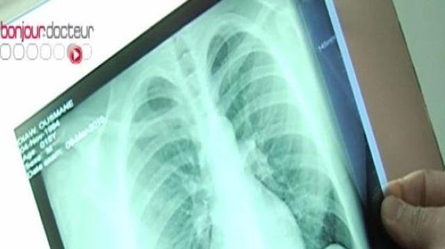 La tuberculose en baisse en France, sauf en Seine-Saint-Denis