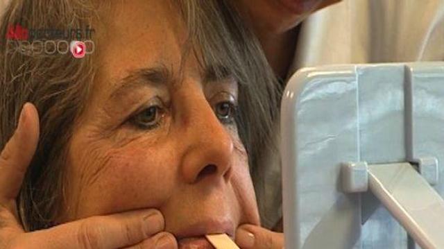 Paralysie faciale : quand le visage se fige