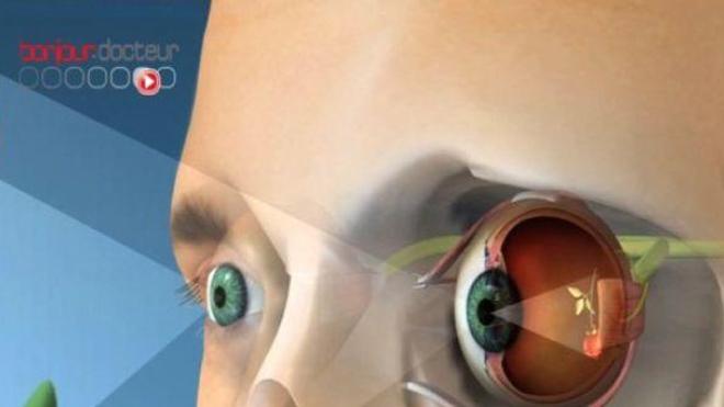 Pénurie d'ophtalmologistes : les orthoptistes à la rescousse