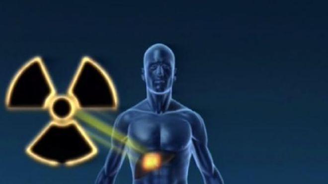 Un implant radioactif pour détruire les tumeurs cancéreuses