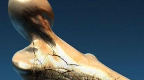 L'ostéoporose, entre méfiance et méconnaissance