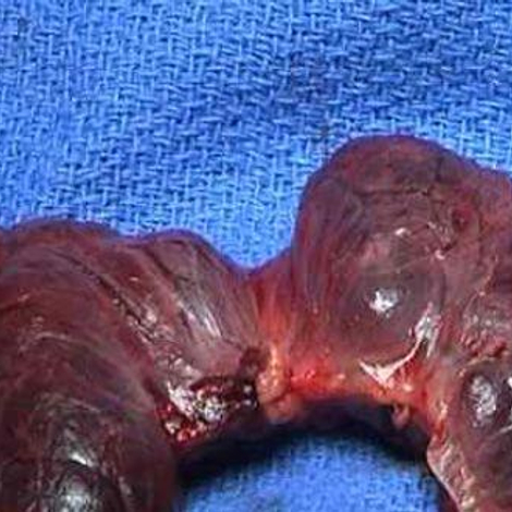 Glande thyroïde : le gendarme de la régulation corporelle