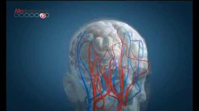 Prévention des AVC : Agir Vite pour le Cerveau