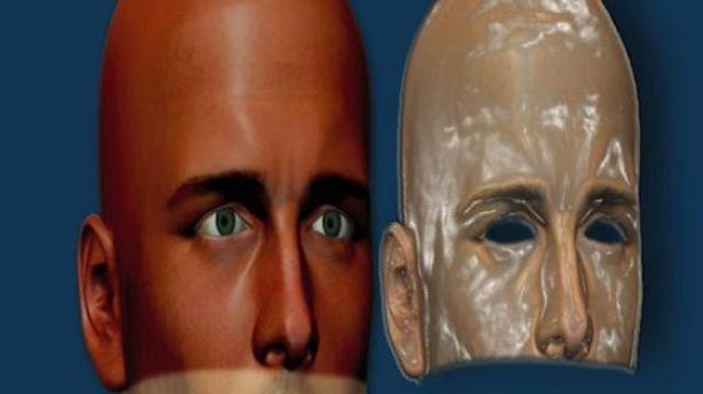 Greffe du visage : une meilleure maîtrise