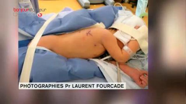 Chirurgie robotique sur un nouveau-né : une première européenne