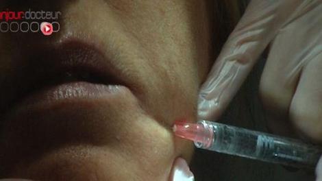 Après les implants PIP, les injections ?