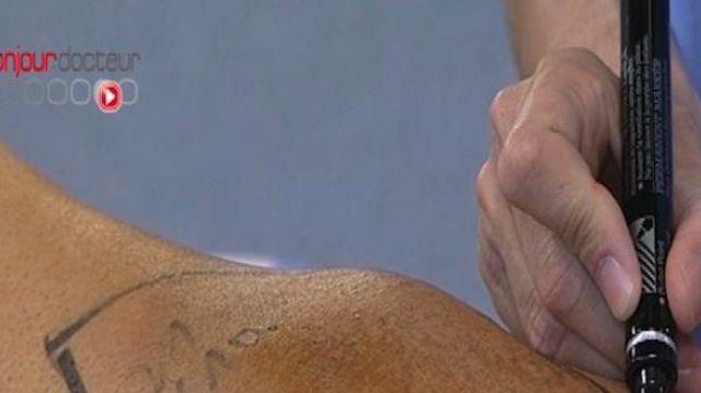 Sarcome : un nouveau traitement de radiothérapie à l'essai