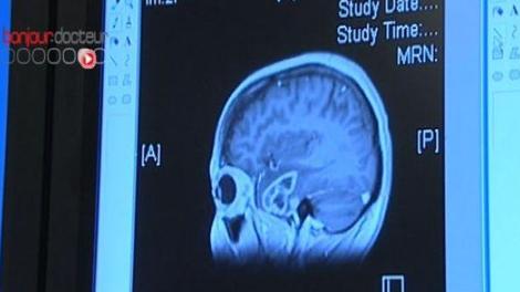 Tumeurs du cerveau : le neurochirurgien Hugues Duffau primé