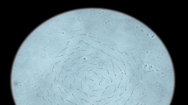 Le bal des spermatozoïdes