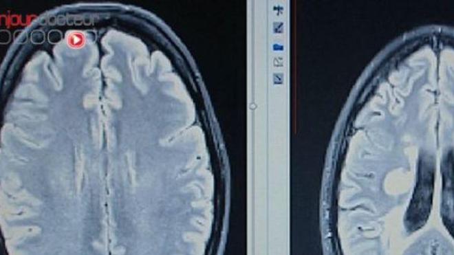Une IRM du cerveau pour diagnostiquer un comportement pédophile ?