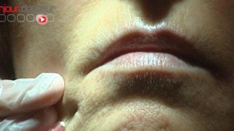 Chirurgiens-dentistes : injections antirides autorisées… dans certains cas
