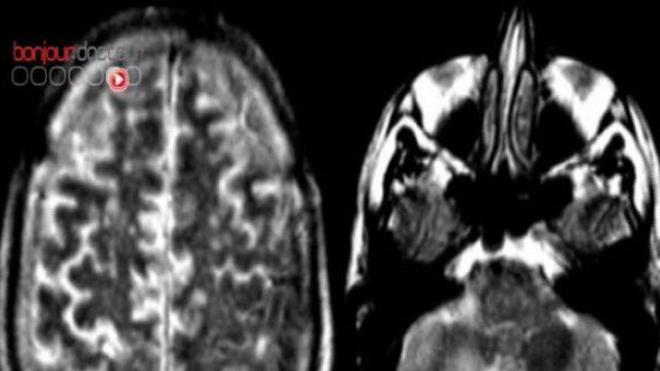 Le stress post-traumatique serait dû à une réorganisation du cerveau