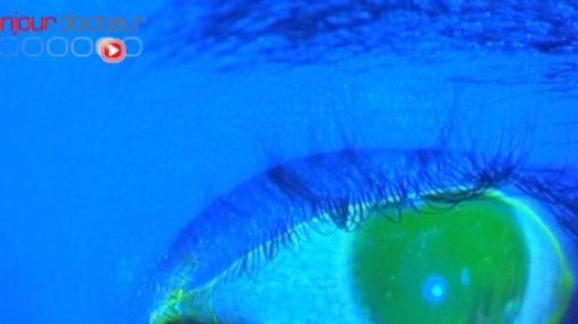 Appel aux candidats sur la santé visuelle à deux vitesses