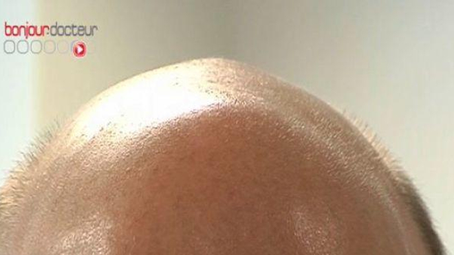 Calvitie masculine : une nouvelle piste de traitement possible