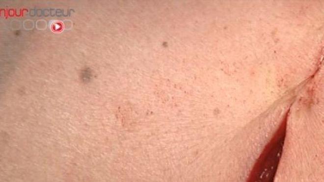 Cicatrices et cicatrisation
