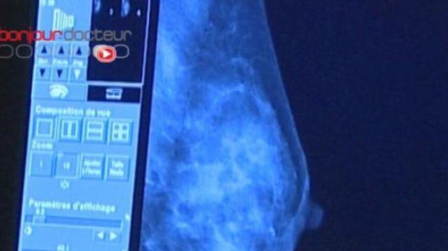 Cancer du sein : un dépistage au bilan mitigé