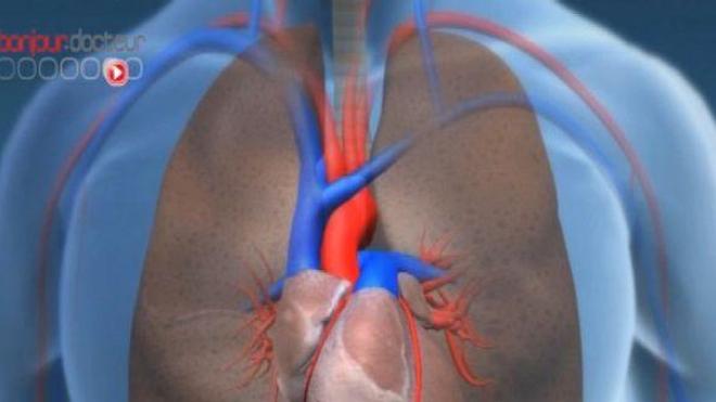 Le plus petit coeur artificiel jamais implanté
