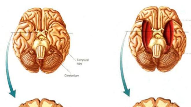 L'hippocampe, une structure cérébrale essentielle à la mémoire
