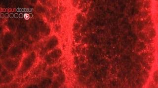 Epidémie de rougeole en Midi-Pyrénées