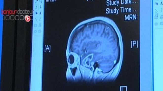 Maltraitance : des stigmates dans le cerveau