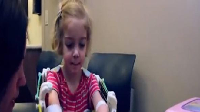 Une enfant retrouve l'usage de ses bras grâce à une imprimante 3D