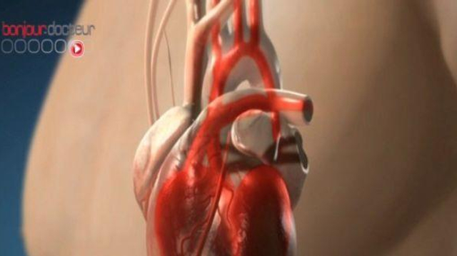 Crises cardiaques : moins de décès, mais plus de femmes touchées
