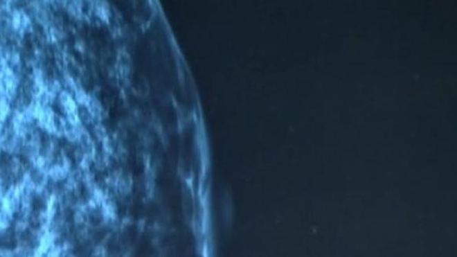 Cancer du sein : nuits courtes, risques de récidives