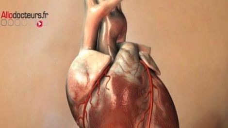 Mauvais bilan pour l'insuffisance cardiaque en France