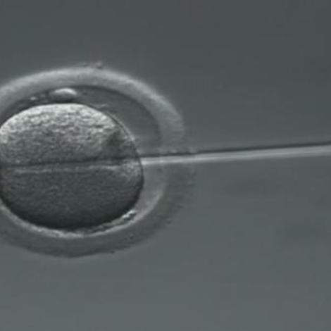 Tout savoir sur la fécondation in vitro