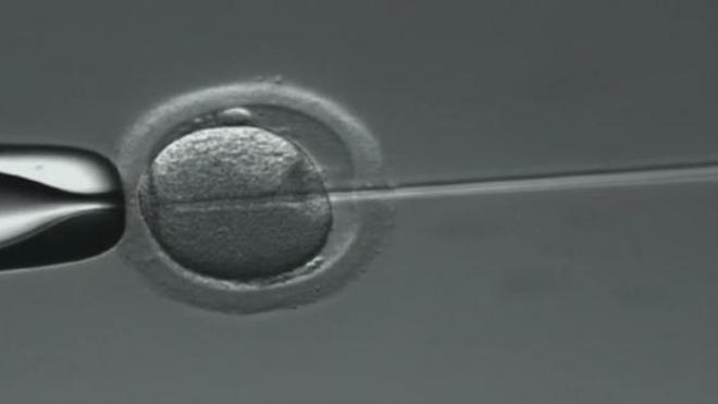 Grossesse : moins de naissances à risque lors d'une FIV après 40 ans