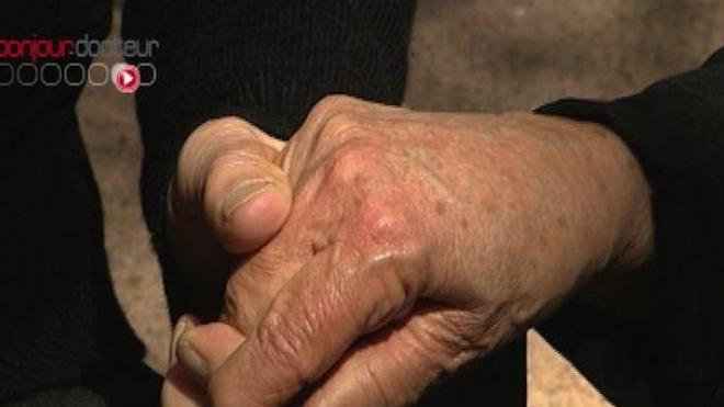 La maladie d'Alzheimer fait peur aux Français