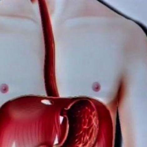 RGO : des solutions contre le reflux gastrique