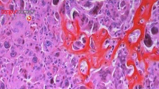 Cancer, où en est la recherche