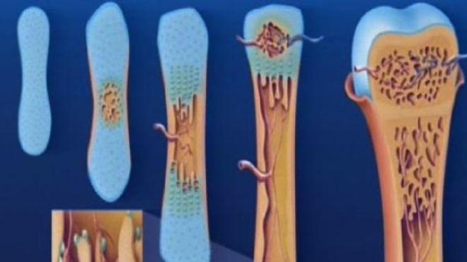 Ostéoporose : pour une meilleure prise en charge