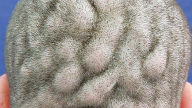 Un Brésilien atteint d'une déformation rare du cuir chevelu
