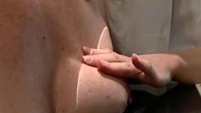 Le dépistage du cancer du sein sauve des vies, malgré un surdiagnostic