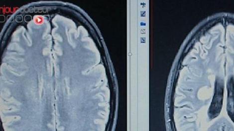 Cerveau : les taches blanches n'ont rien à voir avec les migraines