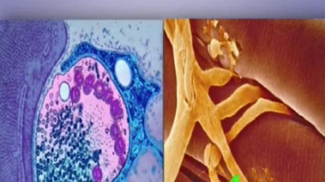 Certaines maladies auto-immunes ont-elles une composante virale ?