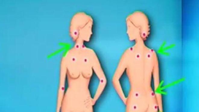 Ch@t : La fibromyalgie