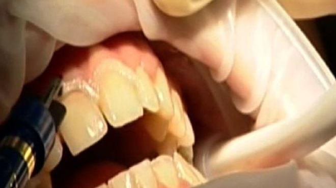 Ch@t : La santé de vos dents