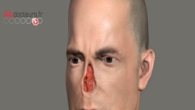 Naissance d'un nouveau nez... sur un bras