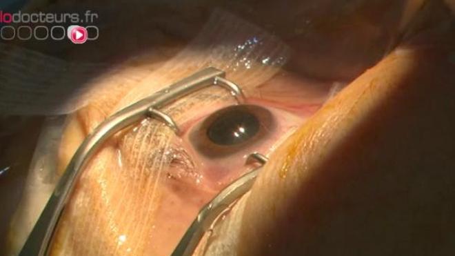 Cataracte : opérer pour réparer et corriger