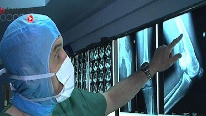 Tumeurs et chirurgie des os