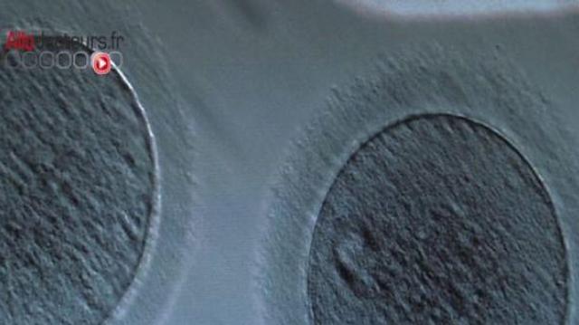 Cancer : mieux informer sur les risques d'infertilité liés aux traitements